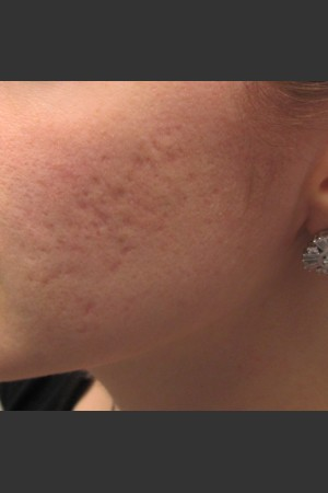 Before Photo for Infini Acne Scar Treatment #11   - ZALEA Before & After