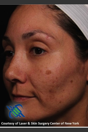 Before Photo for Treatment of Melasma on the Left Side   - Roy G. Geronemus, M.D. - ZALEA Before & After