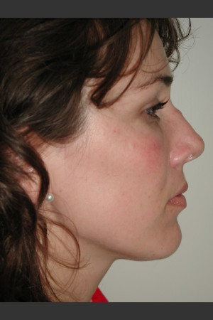 Before Photo for Rhinoplasty   - James Newman - ZALEA Before & After