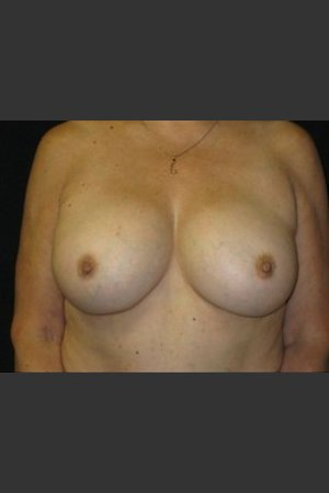 After Photo for Breast Augmentation    - Robert Aycock - ZALEA Before & After