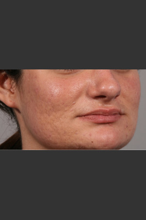 After Photo for 3DEEP Intensif Microneedling Skin Remodeling #2   - ZALEA Before & After