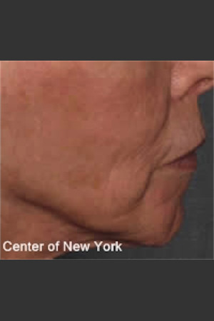 After Photo for Treatment of Fine lines and Wrinkles -  - Prejuvenation