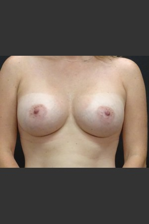 After Photo for Breast Augmentation Case #1   - Gallaher Plastic Surgery & Spa MD - ZALEA Before & After