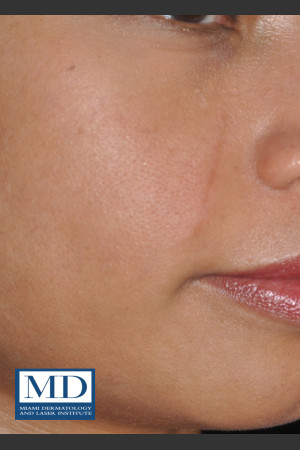 After Photo for Melasma Face Treatment 116   - Jill S. Waibel, MD - ZALEA Before & After