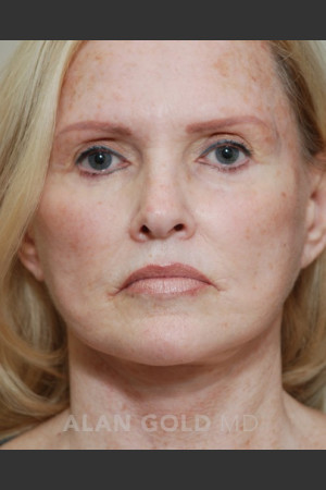 After Photo for Rhytidectomy (Facelift) 1753   - Alan Gold MD - ZALEA Before & After