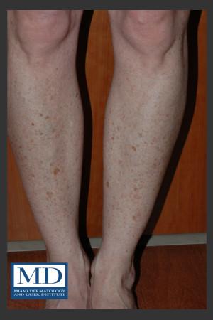 Before Photo for Photorejuvenation Treatment 111   - Jill S. Waibel, MD - ZALEA Before & After