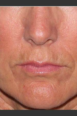 After Photo for Reduction of Perioral Lines   - Lawrence Bass MD - ZALEA Before & After