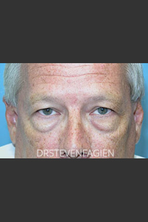 Before Photo for Periorbital Rejevenation - Patient 5   - Steven Fagien, MD - ZALEA Before & After