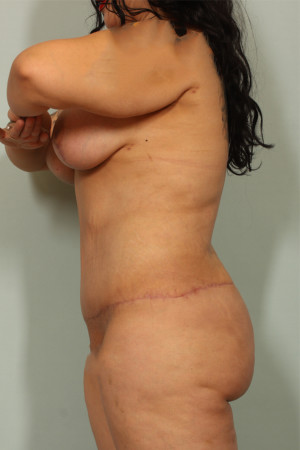 After Photo for Tummy Tuck and Liposuction   - Lawrence Bass MD - ZALEA Before & After
