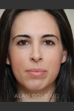 After Photo for Rhinoplasty 1669   - Alan Gold MD - ZALEA Before & After