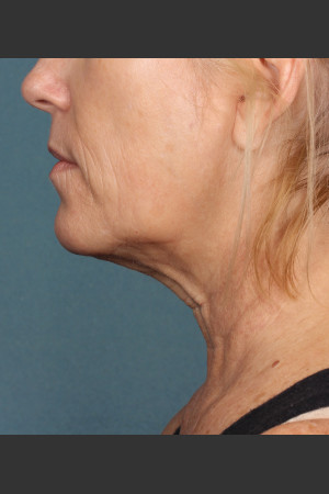 After Photo for Kybella Treatment 54 Year Old Female   - ZALEA Before & After