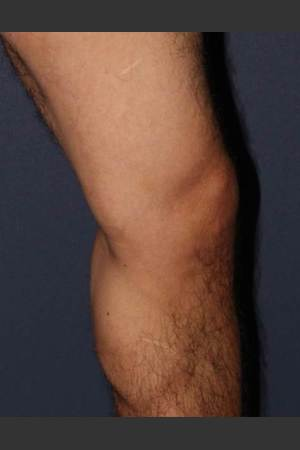 After Photo for Non-surgical Leg Vein Treatment   - Mitchel P. Goldman M.D. - ZALEA Before & After