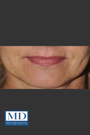 After Photo for Lip Filler 133   - Jill S. Waibel, MD - ZALEA Before & After