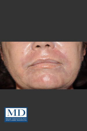 After Photo for Wrinkle Treatment 125   - Jill S. Waibel, MD - ZALEA Before & After