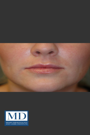 After Photo for Lip Filler 134 - Jill S. Waibel, MD - Prejuvenation
