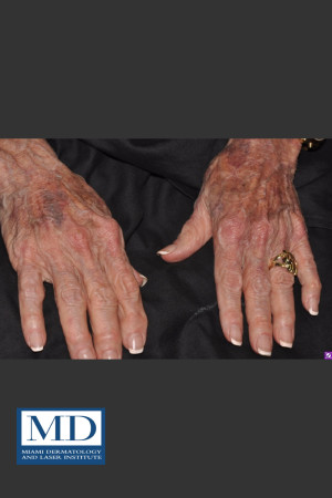 Before Photo for Sun Damaged Hands Treatment 115   - Jill S. Waibel, MD - ZALEA Before & After