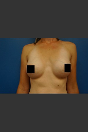 After Photo for Breast Augmentation - Dr. Josh Olson - Prejuvenation