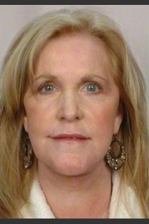 After Photo for 58 Year Old Female: Facelift - R. Scott Yarish MD, FACS - Prejuvenation