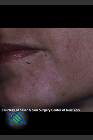 After Photo for Left Chin Treatment of Facial Cafe au Lait - Roy G. Geronemus, M.D. - Prejuvenation
