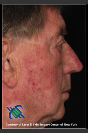 Before Photo for Male Full Face Fraxel Treament   - Roy G. Geronemus, M.D. - ZALEA Before & After