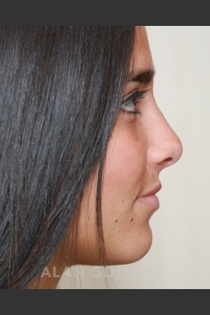 After Photo for Rhinoplasty 1676 Side View   - Alan Gold MD - ZALEA Before & After