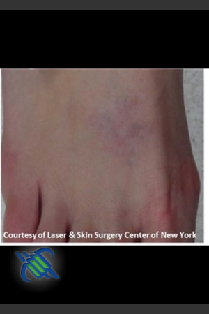 After Photo for Laser Treatment of Foot Tattoo   - Lawrence Bass MD - ZALEA Before & After