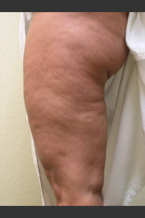 Before Photo for 3DEEP Thigh Cellulite Reduction   - ZALEA Before & After