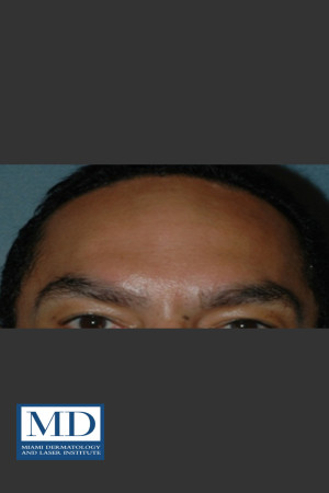 After Photo for Neurotoxin Treatment of Forehead 131   - Jill S. Waibel, MD - ZALEA Before & After