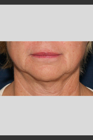 After Photo for Profound Lower Face Lift Treatment   - ZALEA Before & After