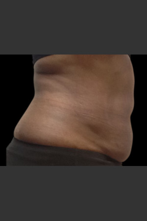 After Photo for Body Contouring Treatment #120 -  - Prejuvenation