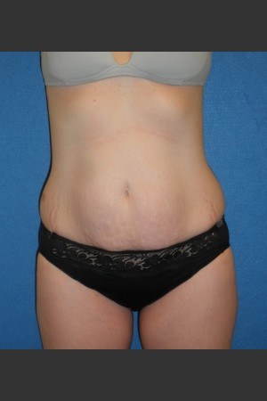 Before Photo for Tummy Tuck Case #1   - South Coast Plastic Surgery - ZALEA Before & After