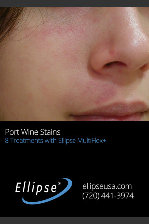 After Photo for Treatment of Port Win Stain on the Face   - ZALEA Before & After