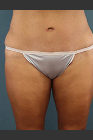 After Photo for Before and After Tummy Tuck   - Arthur Handal - ZALEA Before & After
