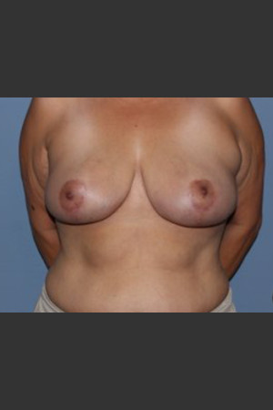 After Photo for Breast Lift Case #1   - Lawrence Bass MD - ZALEA Before & After