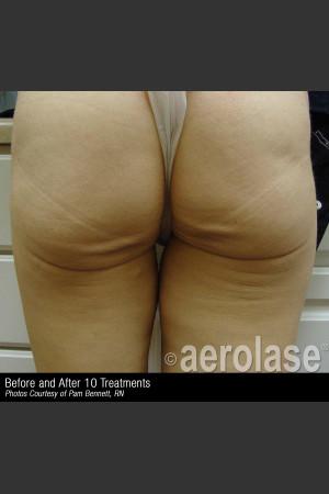 Before Photo for Treatment of Skin Laxity #309   - ZALEA Before & After