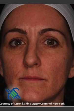 After Photo for Full Face Skin Rejuvenation - Roy G. Geronemus, M.D. - Prejuvenation