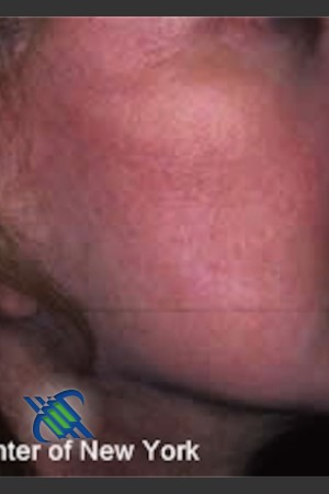 After Photo for Treatment of Right Cheek Pigmentation   - Lawrence Bass MD - ZALEA Before & After