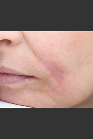 After Photo for Traumatic scar    - Paul M. Friedman, M.D. - ZALEA Before & After