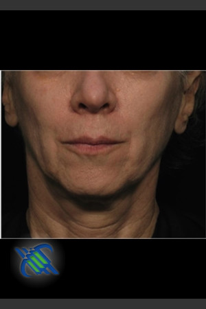 After Photo for Treatment of Facial Laxity with Profound   - Roy G. Geronemus, M.D. - ZALEA Before & After