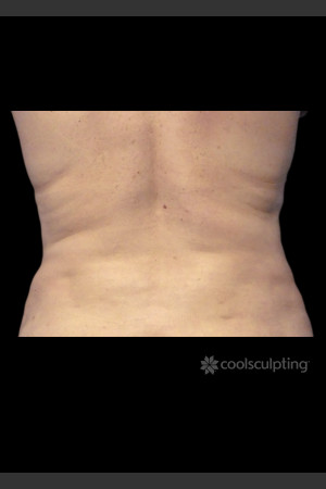 After Photo for CoolSculpting on Woman's Love Handles -  - Prejuvenation