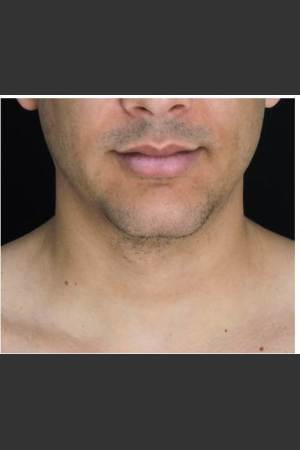 After Photo for Doble Chin Removed with 1 CoolSculpting treatment    - Leyda Elizabeth Bowes, M.D. - ZALEA Before & After