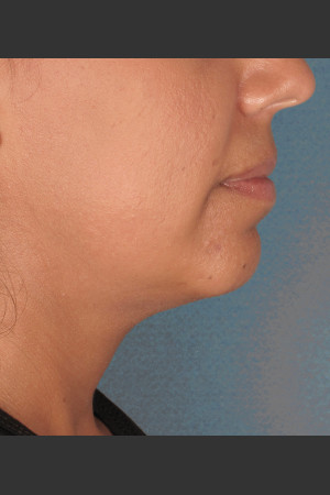 Before Photo for Kybella Treatment 34 Year Old Female   - ZALEA Before & After
