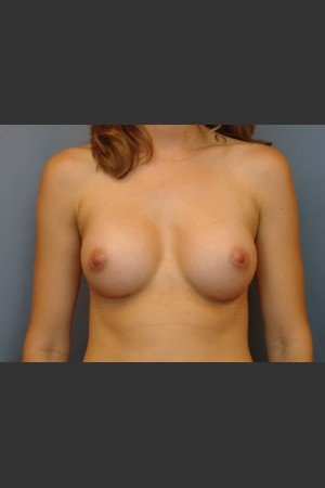 After Photo for Breast Augmentation - Michael S. Beckenstein, MD - Prejuvenation