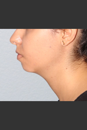 Before Photo for Chin Augmentation   - Bryan J. Correa, MD - ZALEA Before & After