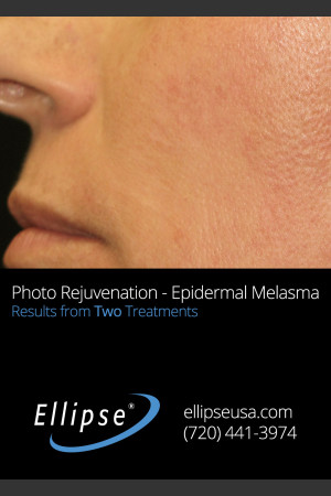 After Photo for Treatment of Pigmentation and Melasma    - ZALEA Before & After