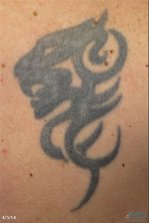 Before Photo for Picosure Laser Tattoo Removal   - Robert Weiss, M.D., F.A.A.D., F.A.C.Ph - ZALEA Before & After