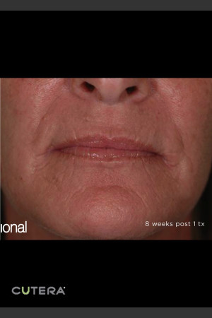 After Photo for Pearl Fusion Resurfacing of Wrinkles   - ZALEA Before & After
