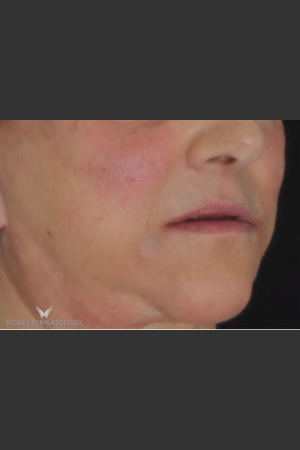 After Photo for Radiesse and Juvederm Ultra   - Leyda Elizabeth Bowes, M.D. - ZALEA Before & After