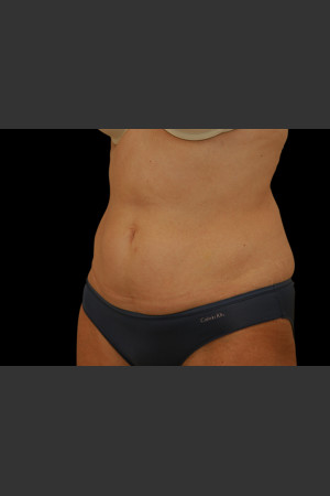 Before Photo for Body Contouring Treatment #111   - ZALEA Before & After