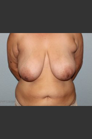 Before Photo for Breast Lift Case #1   - Lawrence Bass MD - ZALEA Before & After
